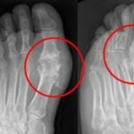 Chiropractic and the treatment of gout